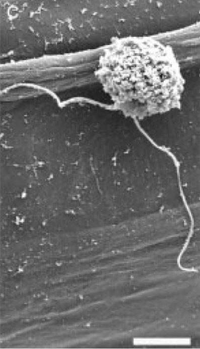 Spore mildiou au microscope